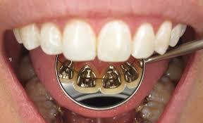 יישור שיניים לינגואלי